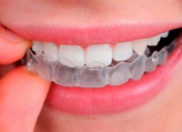 Las férulas dentales y sus usos